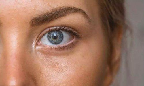 Λιπαρό δέρμα : Ο πιο ιδιότροπος τύπος δέρματος